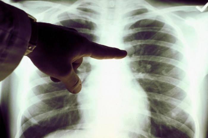 Методы определения пневмонии