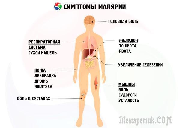 Медицинские заболевания - малярия