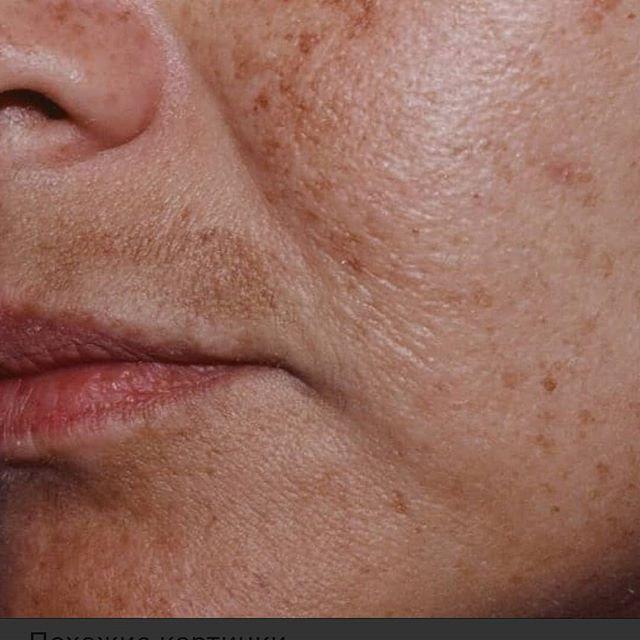 Дисхромии кожи — большая медицинская энциклопедия