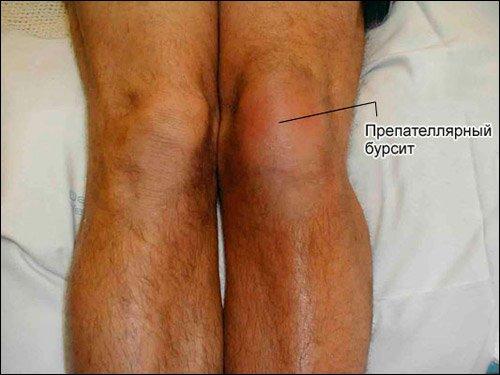 Гнойный бурсит локтевого сустава: симптомы и лечение медикаментами, операция