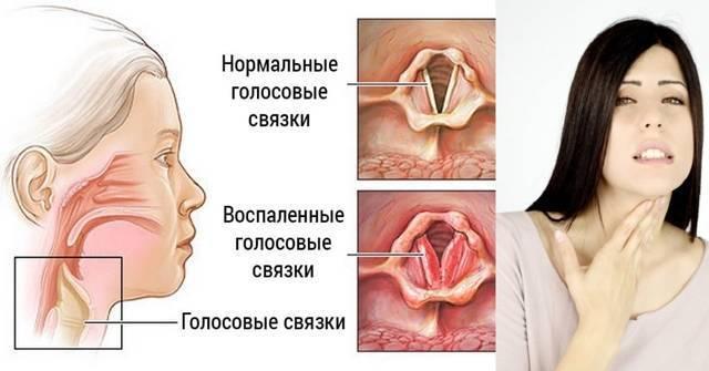 Отит (воспаление уха): что это такое, виды, причины, симптомы и лечение у взрослых и детей