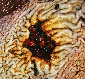 Язвенная болезнь: клиника течения, осложнения и терапия
