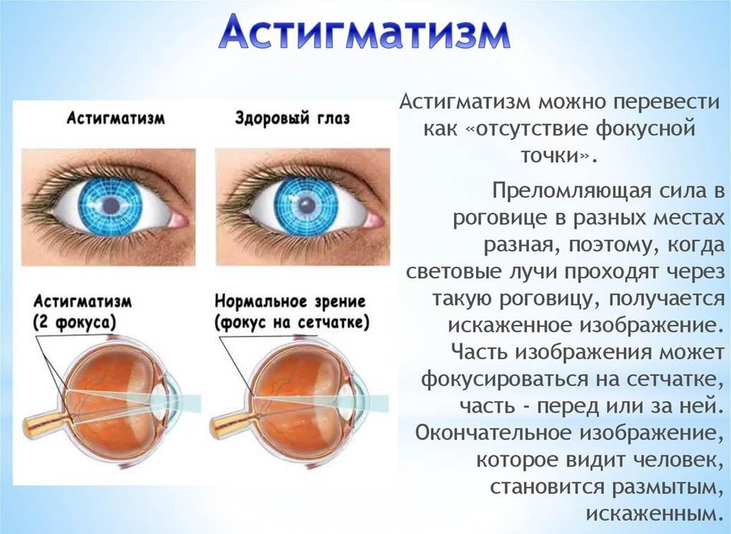вниманию представлены картинки тесты на глаукому мастера
