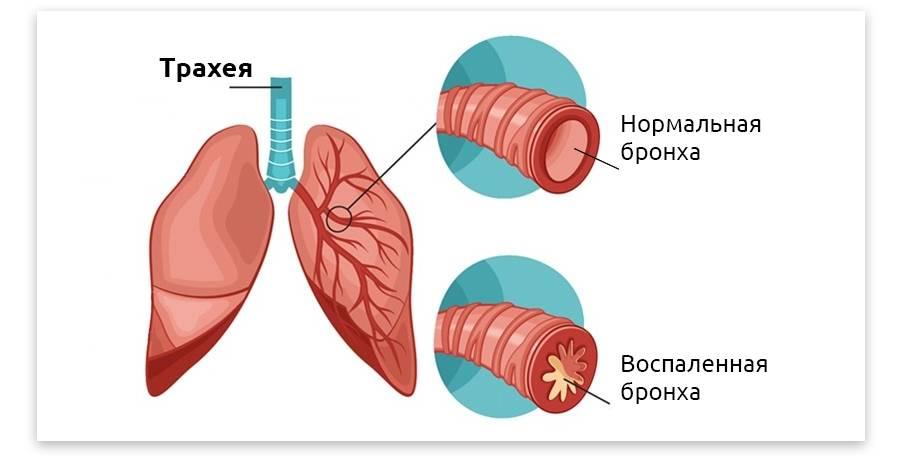 Хронический бронхит у взрослых — симптомы и лечение, причины, осложнения