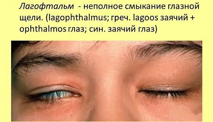 Что такое экзофтальм (пучеглазие): все о болезни