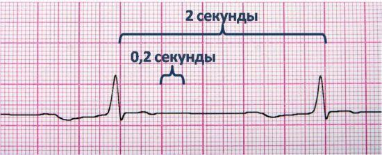 Синдромы предвозбуждения желудочков