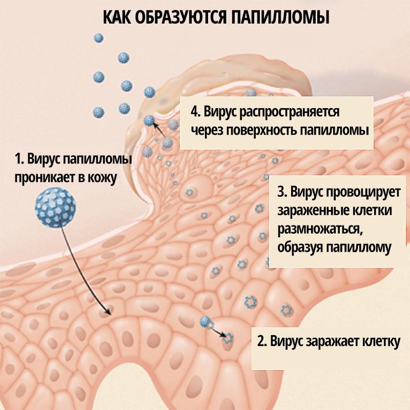 Вирус папилломы у женщин: симптомы, диагностика и лечение