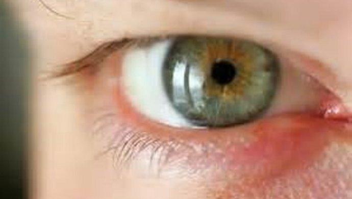 Куриная слепота - что за болезнь, почему возникает?