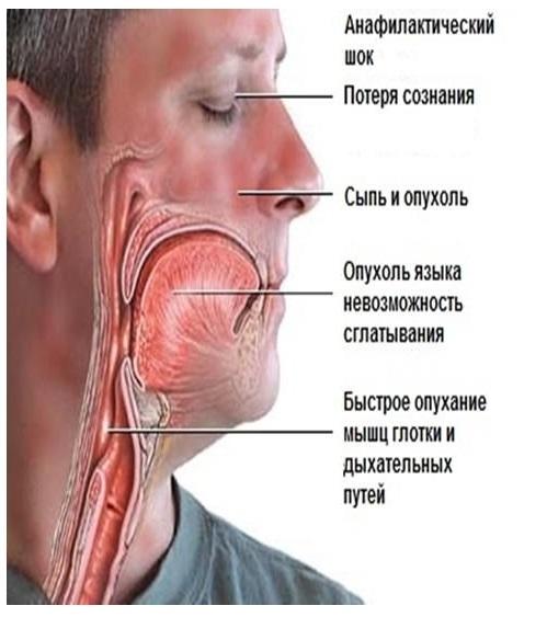 Анафилактический шок: причины, симптомы, первая неотложная помощь при анафилактическом шоке