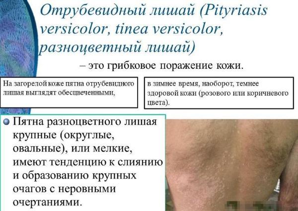 Зуд кожи тела без высыпаний