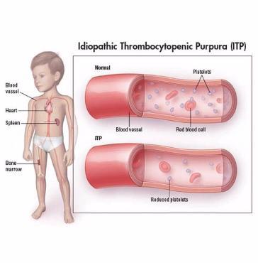 Тромбоцитопеническая пурпура у детей