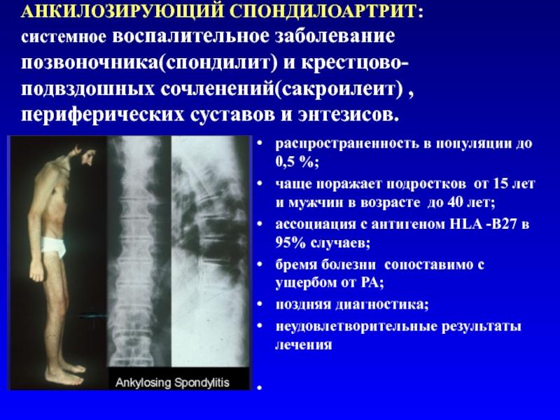Классификация спондилита позвоночника и его лечение