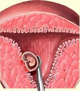 Осложнения аборта: ранние и поздние | proaborty