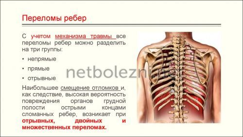 Ушиб ребра. лечение в домашних условиях, симптомы, сколько заживает, как долго болит
