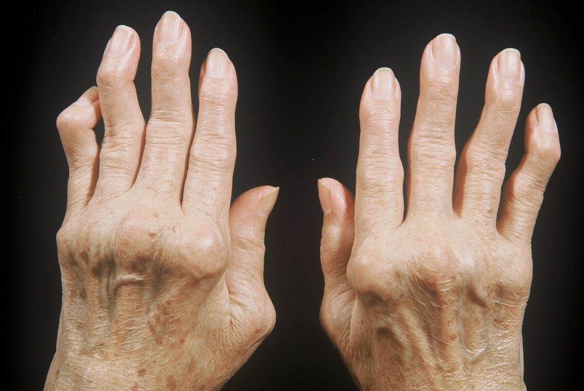 Cимптомы ревматоидного артрита у женщин: особенности проявления