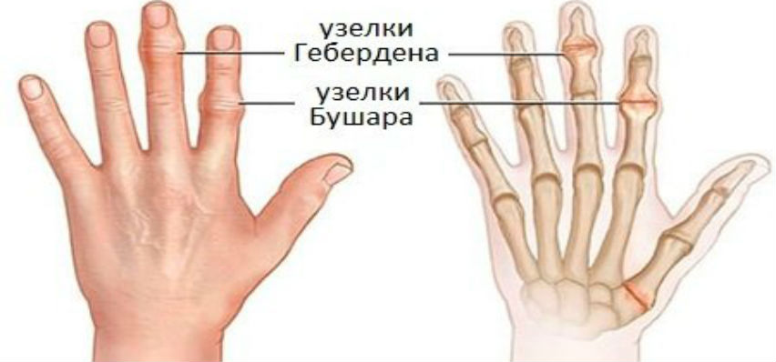 Ревматоидный артрит пальцев рук — первые симптомы, методы лечения