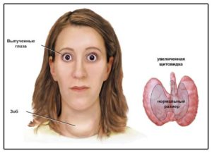 Узловой зоб щитовидной железы - лечение, симптомы, степени тяжести, народные средства в лечении заболевания - docdoc.ru