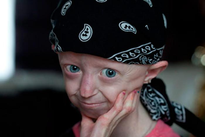 Прогерия (синдром хатчинсона-гилфорда) — болезнь, ставящая жизнь на «ускоренную перемотку»