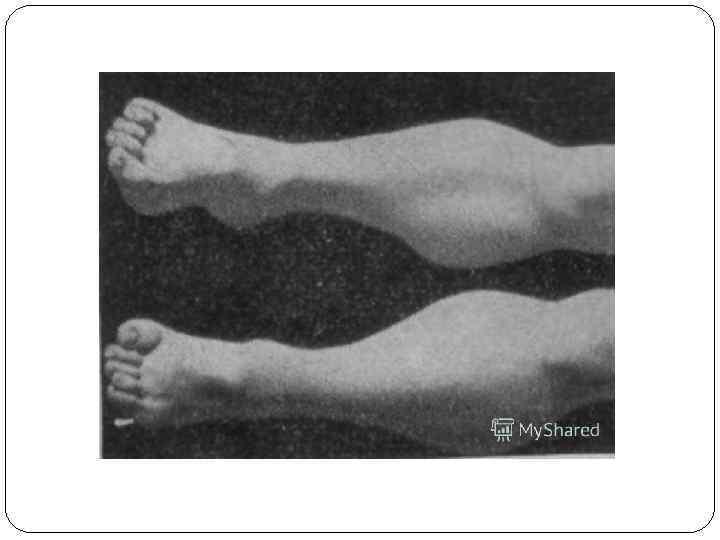 Невральная амиотрофия шарко-мари-тута