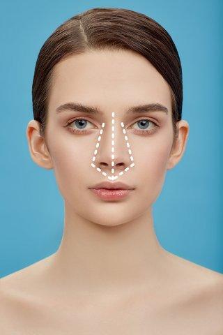 Ринопластика: нюансы операции и важные особенности пластики носа