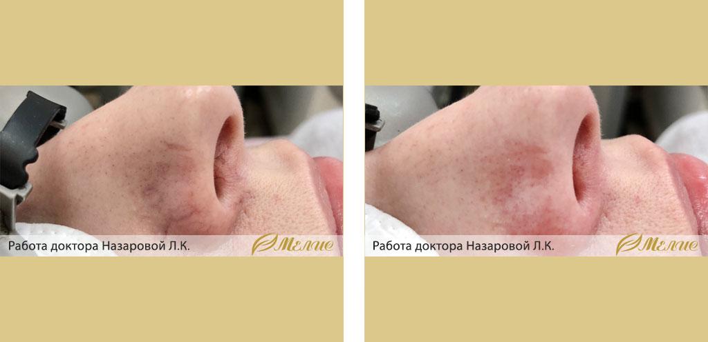 Сосудистые дефекты на лице: почему появляются и как с ними бороться?