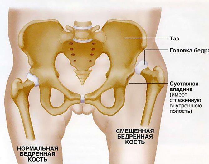 Лечение и реабилитация при переломе бедренной кости