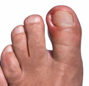 Удаление ногтя на большом пальце ноги при лечении