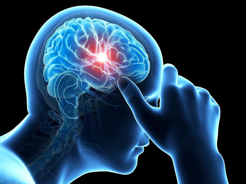 Сотрясение головного мозга: онлайн-диагностика, причины, лечение — онлайн-диагностика