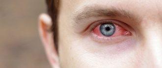 Сигницеф (глазные капли): цена, инструкция, аналоги, отзывы