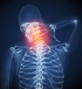 Лечение цервикокраниалгии на фоне шейного остеохондроза