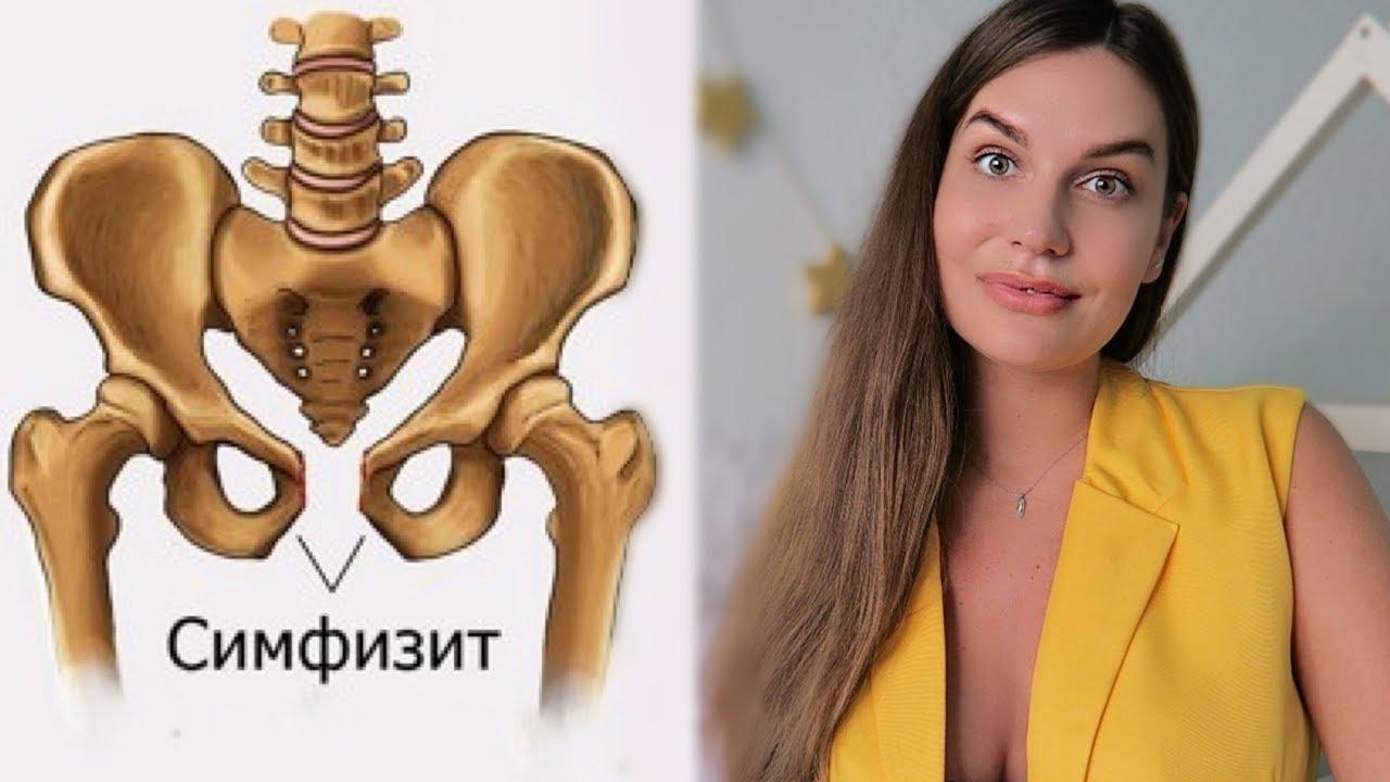 Симфизит после родов: лечение, симптомы, последствия