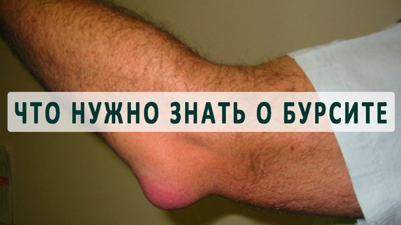 Бурсит локтевого сустава — симптомы и лечение, причины возникновения