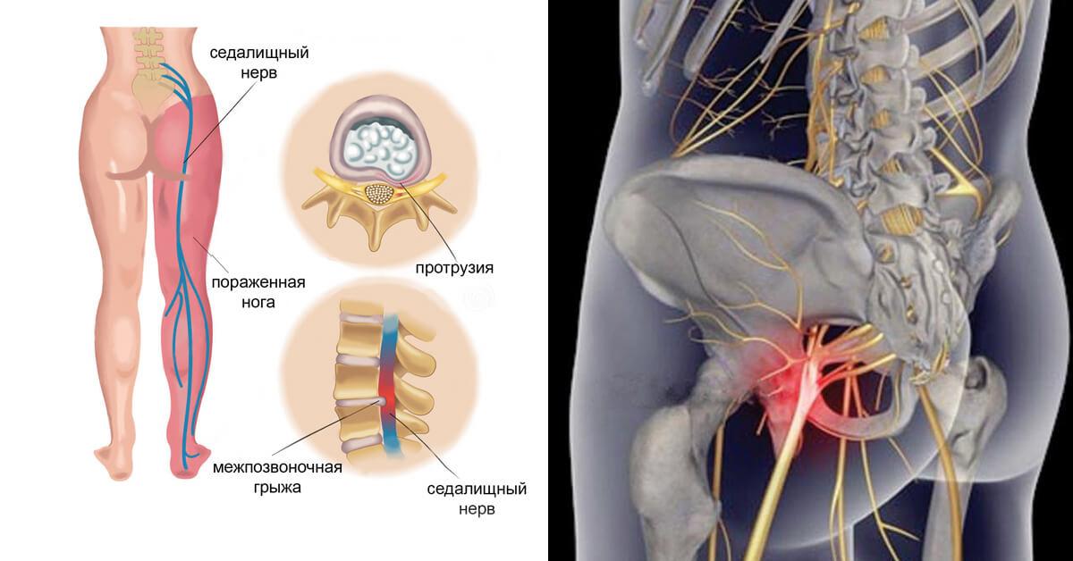 Лечение люмбалгии позвоночника: стандарты, лекарства, лфк, упражнения