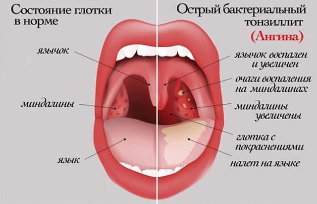 Причины, симптомы и лечение паратонзиллярного абсцесса