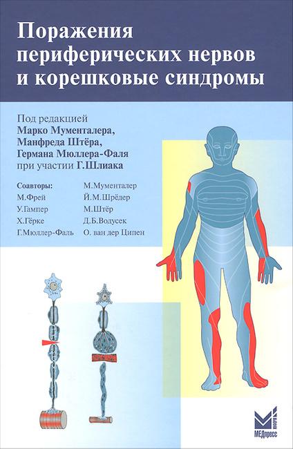 Что такое полинейропатия? симптомы и лечение поражений нервно-мышечного аппарата