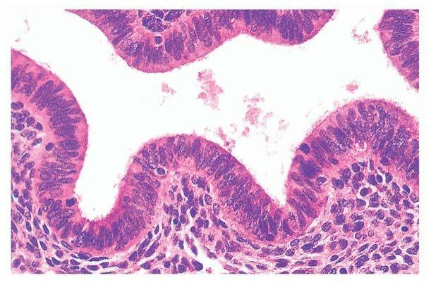 Атрофия эндометрия – норма в менопаузе, патология, требующая лечения, в репродуктивном возрасте