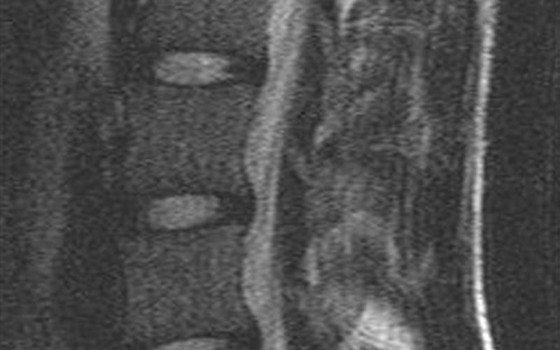 Что такое туберкулезный спондилит