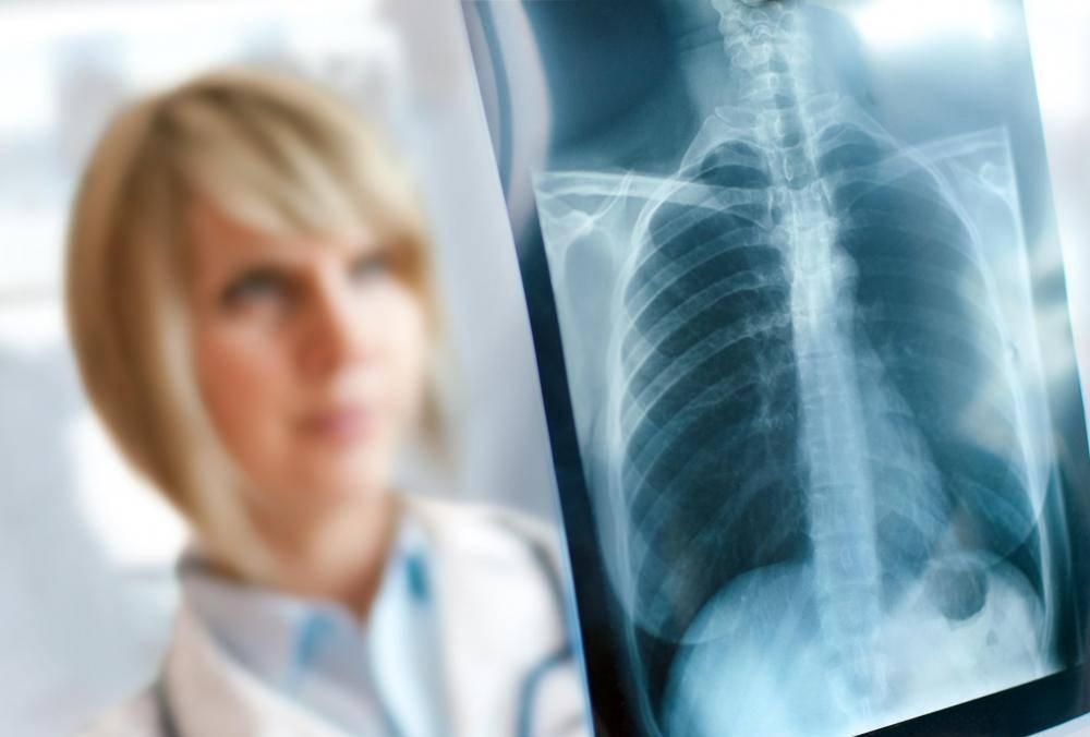 Реабилитация после воспаления лёгких у взрослых
