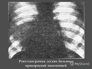 Прикорневая пневмония: симптомы, лечение, профилактика