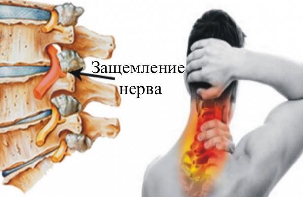 Защемление нерва в позвоночнике: симптомы и методы лечения