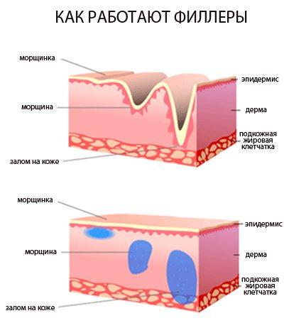 Препарат лаеннек — применение лаеннека в косметологии, инструкции и схемы