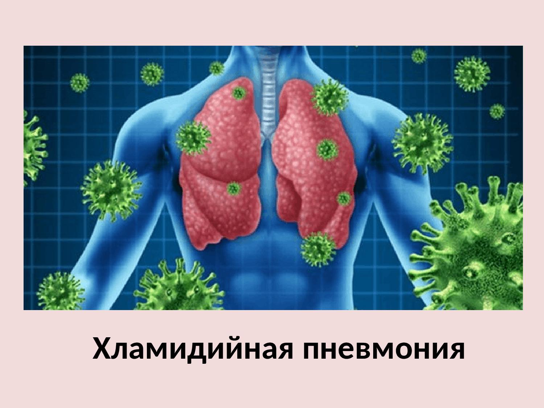 Причины микоплазменной пневмонии, характерные симптомы и принципы лечения