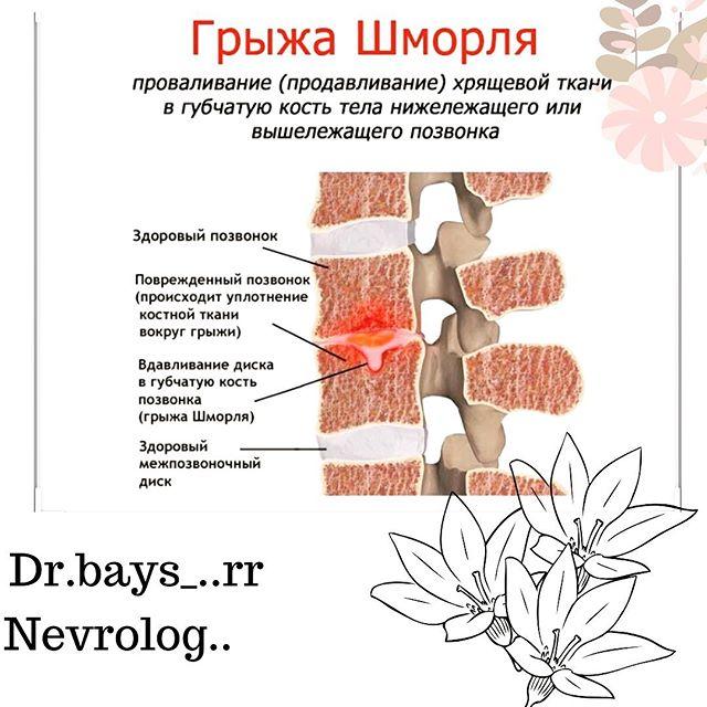 Лечение грыжи шморля: что такое, какие симптомы, медикаменты и хирургия