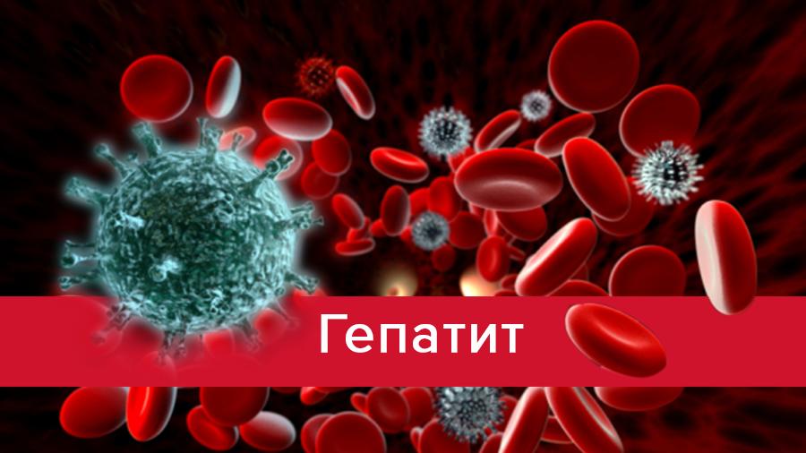 Гепатит - признаки, классификация, симптомы и лечение