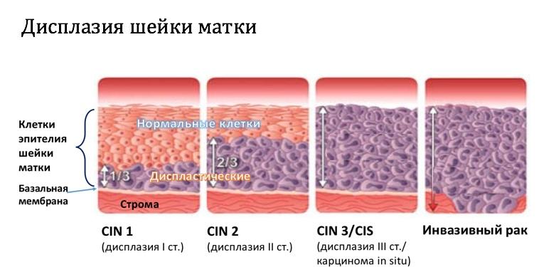 Дисплазия шейки матки: причины, диагностика и лечение