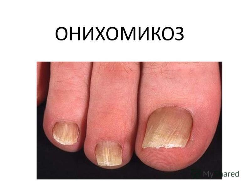 Микоз ногтей: как возникает, лечение, лучшие препараты