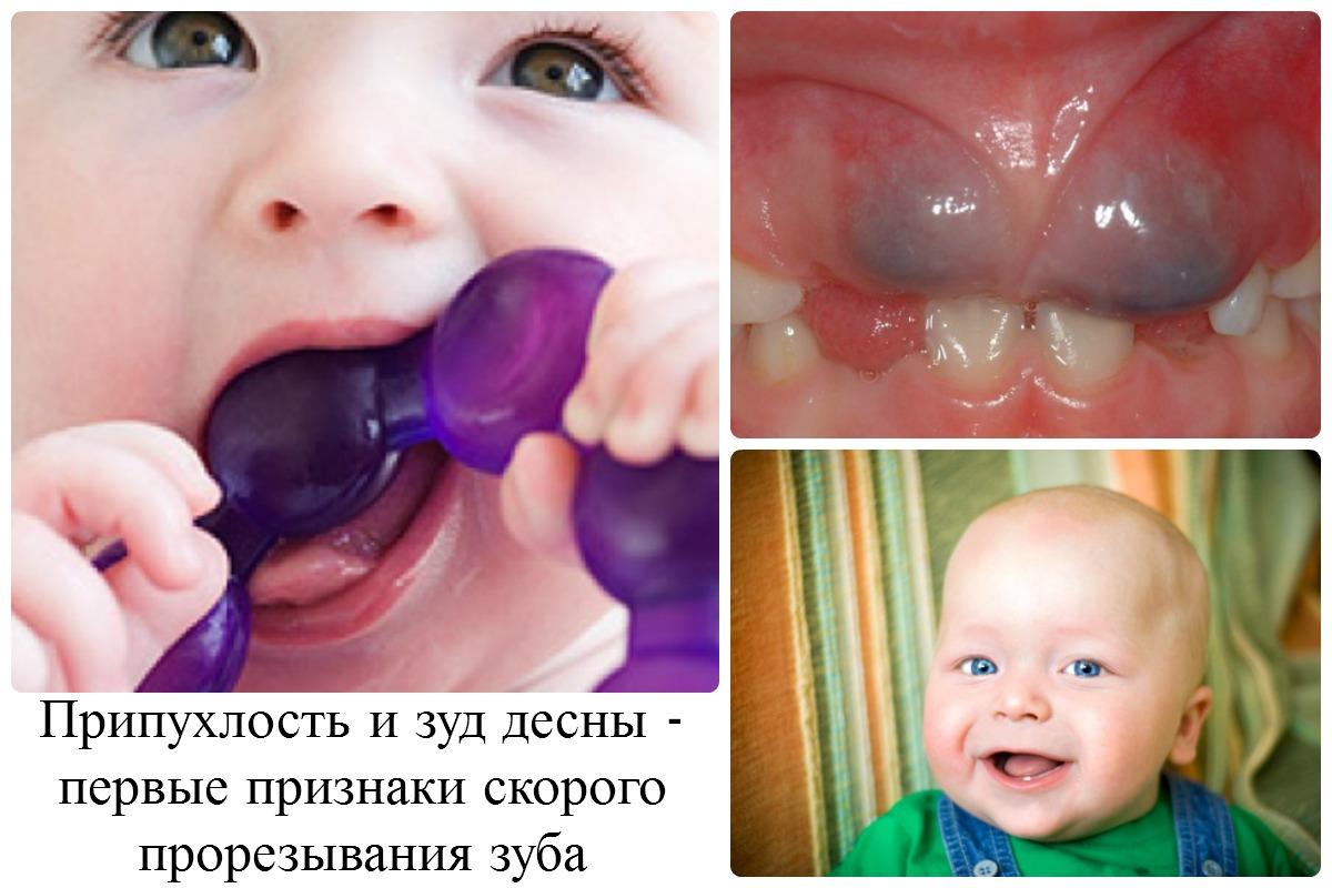 Все о прорезывании молочных зубов у младенцев...
