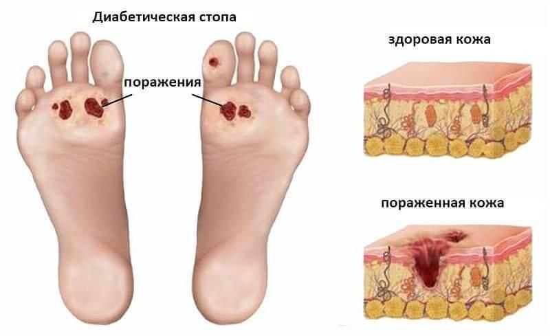 Симптомы и лечение диабетической полинейропатии нижних конечностей: методы и препараты