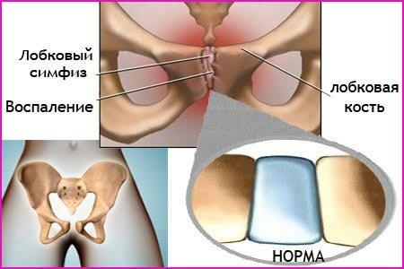 Симфизит после родов:  вопросы травматологии и советы по лечению