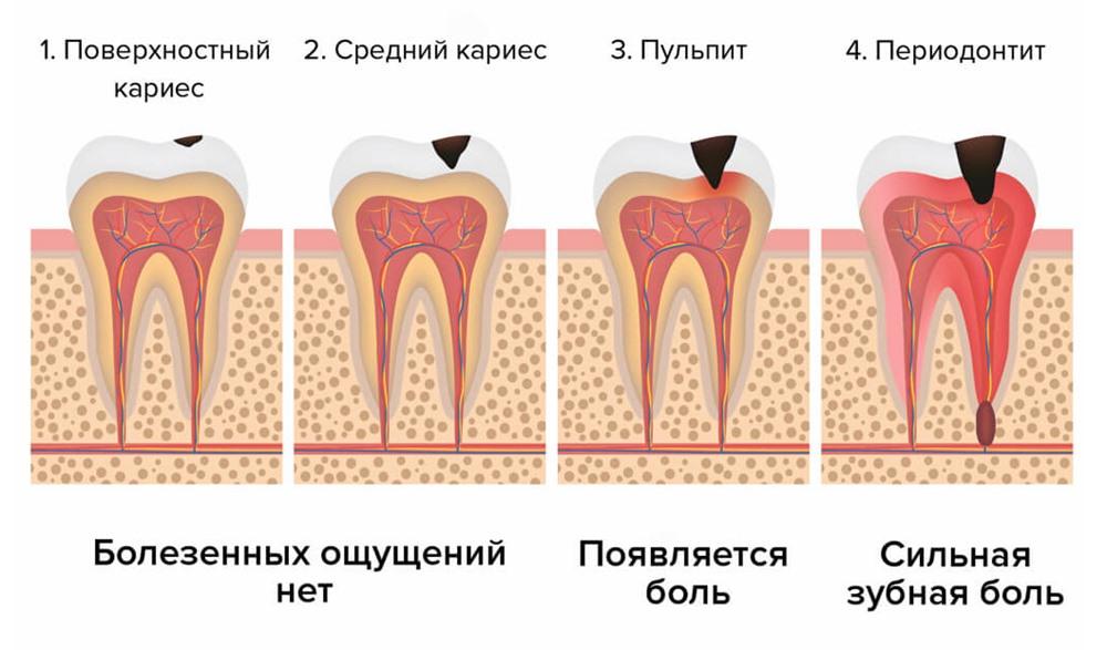 Острый периодонтит: симптомы и лечение